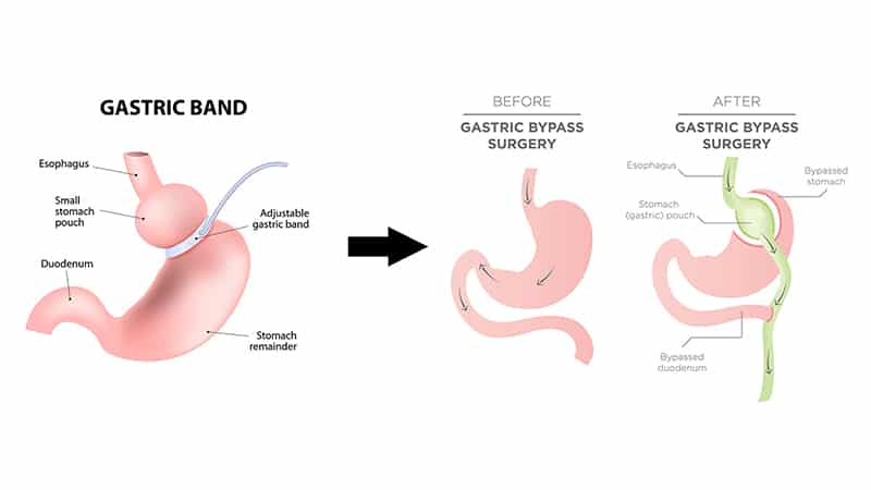 Revisional Weight Loss Surgery Melbourne Weight Loss Surgeon